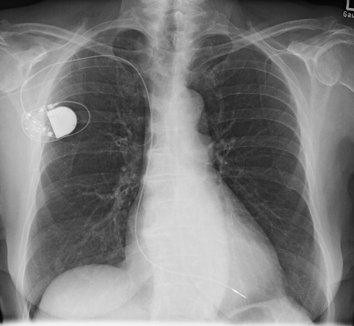 Sitz eines Herzschrittmachers im Körper