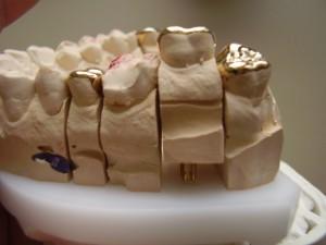 Gipsmodell eines Gebisses, wie es im Bereich der Zahntechnik Verwendung findet